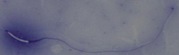 Milky Stork Sperm